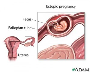 diagram of ectopic pregnancy