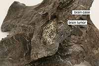 gorgo_braincase_small_withtumor